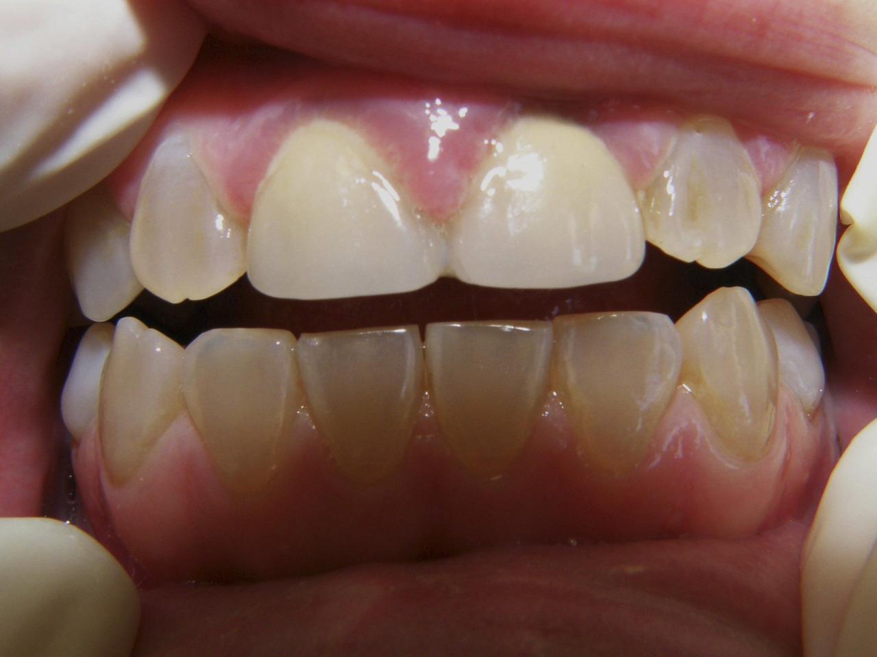Рис. 1а. Зубы младшей сестры.