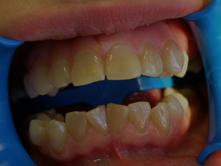 Рис. 1б. Зубы старшей сестры.