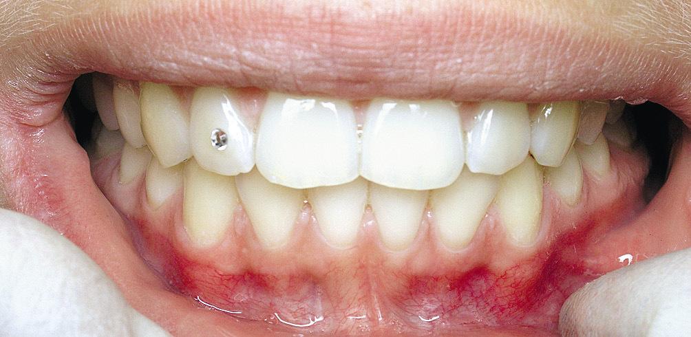Рис. 1. Зубы молодой пациентки.