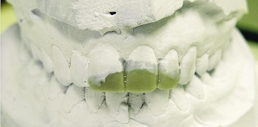 Рис. 3. Моделирование из воска разрушенной коронковой части зубов 11, 2.1, 2.2.