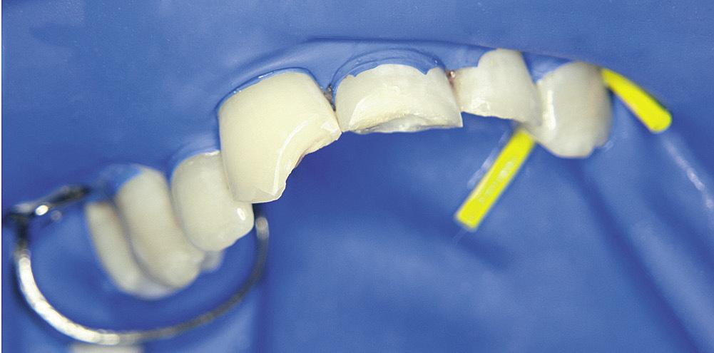 Рис. 4. Зубы 2.1, 1.1 и 2.2 — этап препарирования.