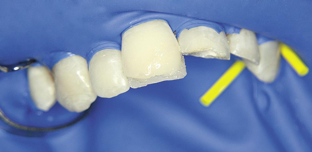 Рис. 5. Зуб 1.1 — восстановление дентина опаковым оттенком.