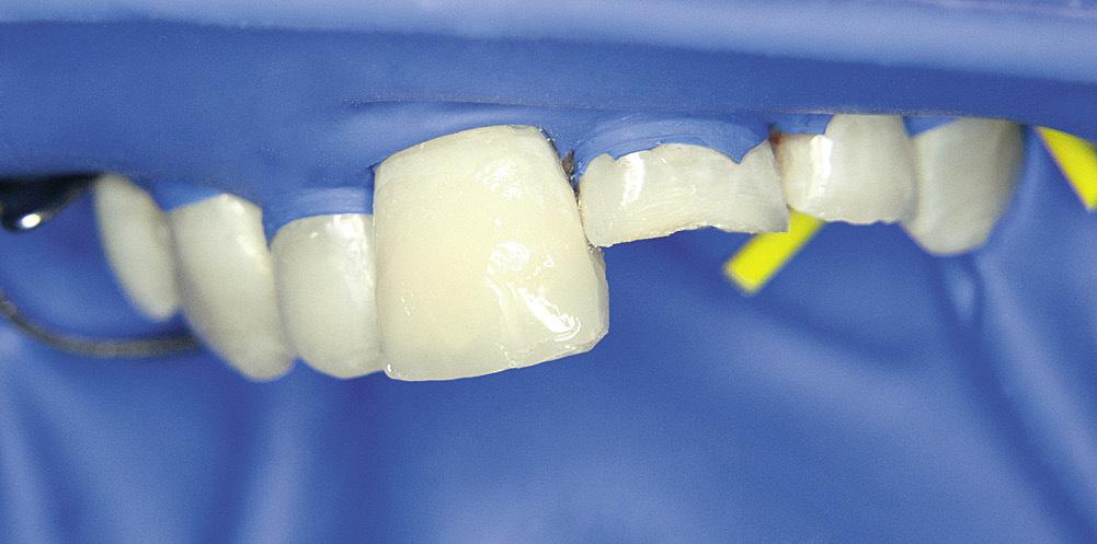 Рис. 6. Зуб 1.1 — этап реставрации.