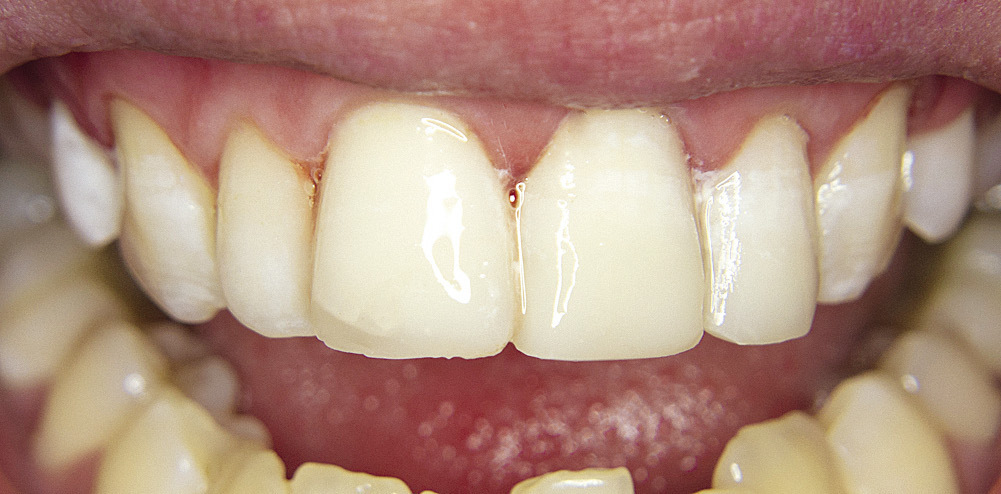 Рис. 8. Зубы 1.1, 2.1, 2.2 — окончательный вид реставраций.