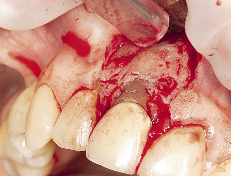 Рис. 22. Дефект вестибулярной стенки альвеолы.
