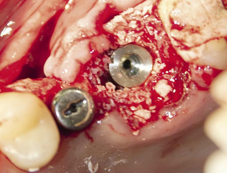 Рис. 44. Позиционирование имплантата в лунке удаленного зуба.