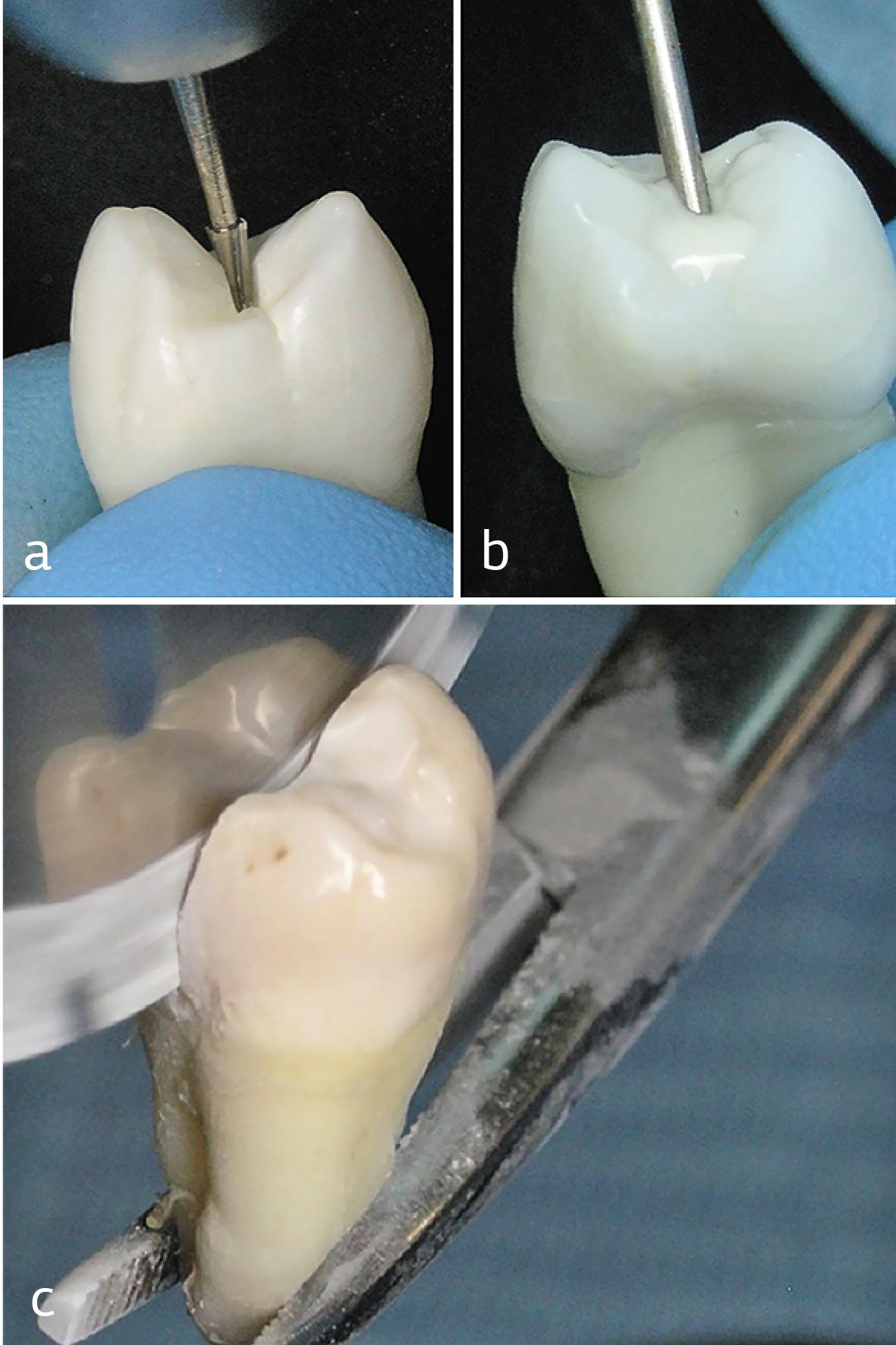 Рис. 2. Основные этапы выполненного исследования: a — препарирование фиссур удаленных премоляров; b — заполнение полости текучим композитом; c — изготовление шлифов зубов.