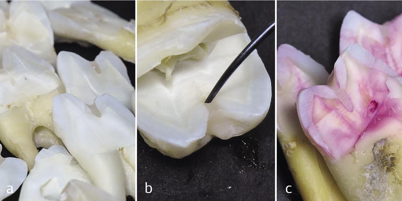 Рис. 3. Оценка краевого прилегания: a — визуально; b —зондирование границы пломба/зуб; c — окрашивание шлифов кариес-детектором.