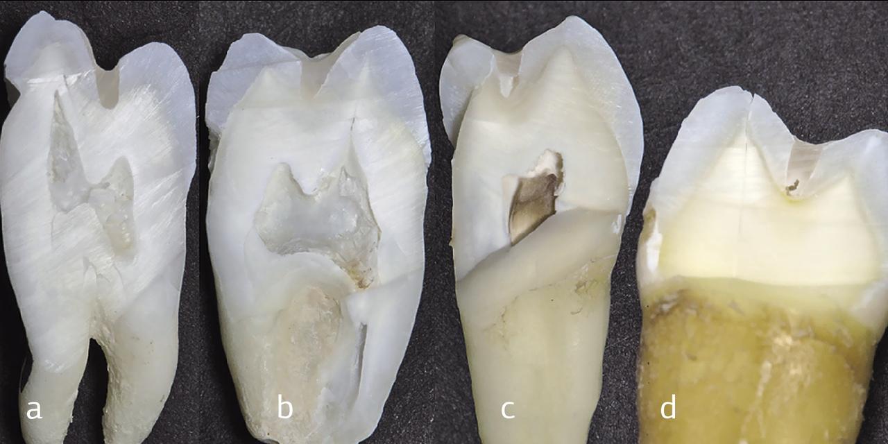 Рис. 4. Результаты анализа качества заполнения полостей текучим композитом в исследуемых группах зубов: a, b — полноценное равномерное заполнение полости текучим композитом; c, d — дефекты заполнения полости текучим композитом.