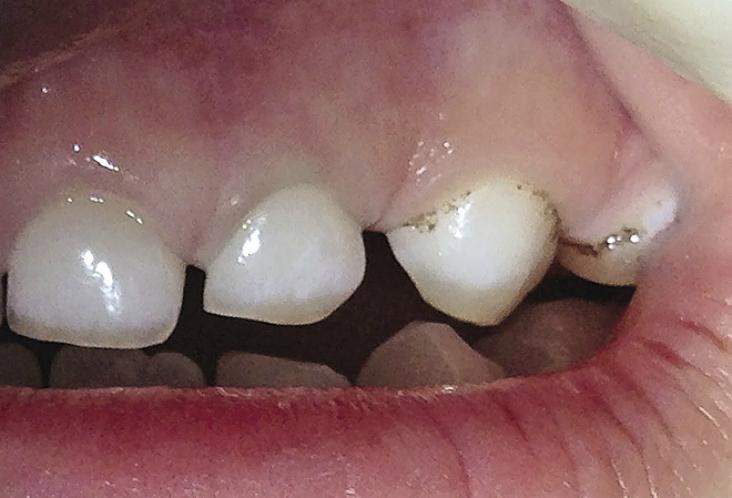 Инструменты для зубной гигиены