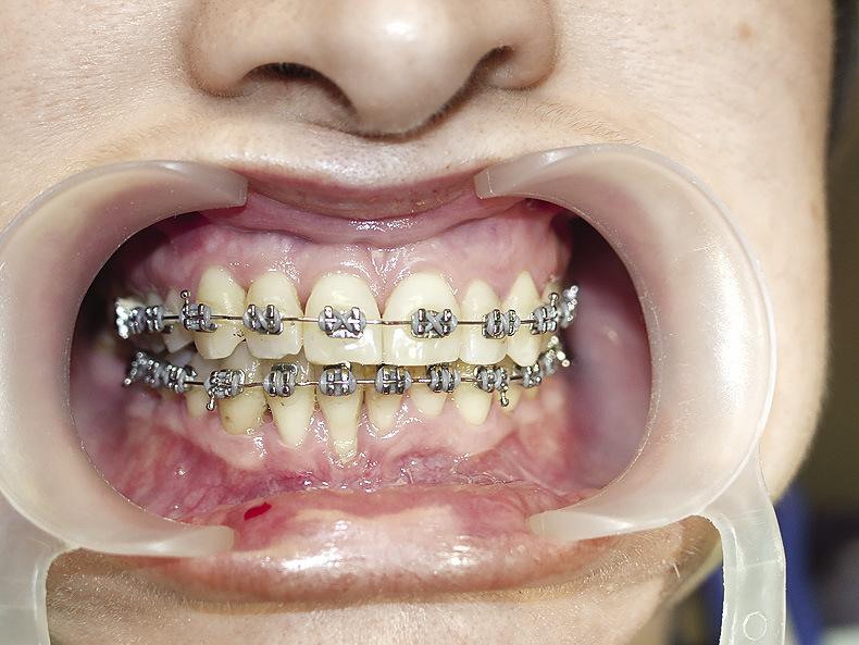 Рис. 17. Уменьшение рецессии в ходе ортодонтического лечения.