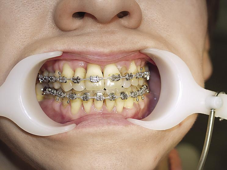 Рис. 19. Уменьшение рецессии после нормализации положения зубов.