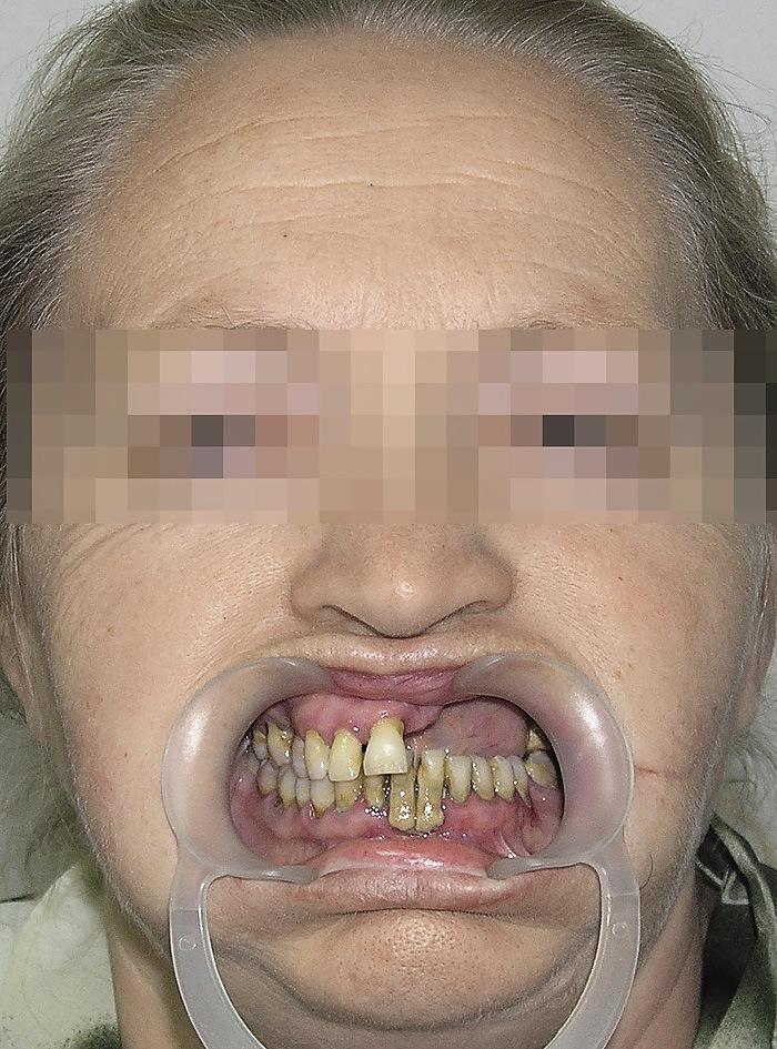 Рис. 1а. Дефект альвеолярного отростка и тела левой верхнечелюстной кости с отсутствием ороантрального сообщения.