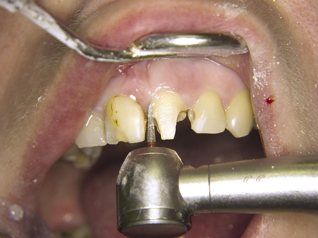 Рис. 5. Зубы 2.1 и 2.2, этап препарирования.