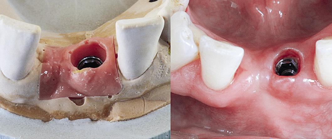Рис. 4. Высота десны на лабораторных моделях выше, чем в полости рта, на треть.