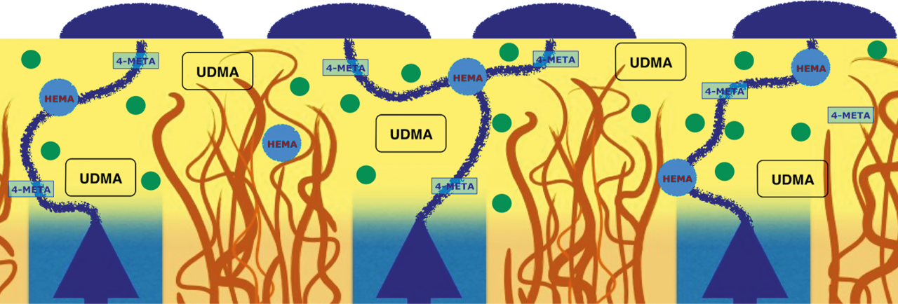 Рис. 1. Схема образования «водного дерева»: дентинная жидкость пропитывает гибридный слой через гидрофильные молекулы и выходит на поверхность.
