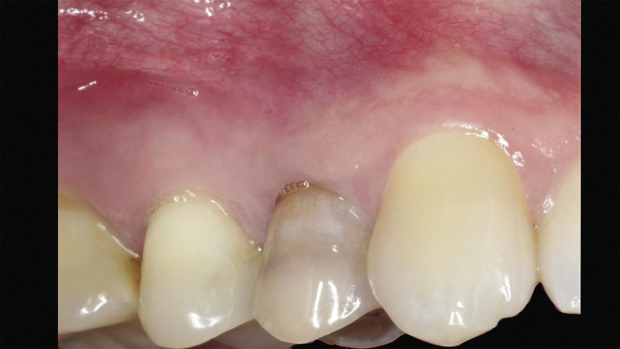 Рис. 1. Вид до удаления 14 зуба.