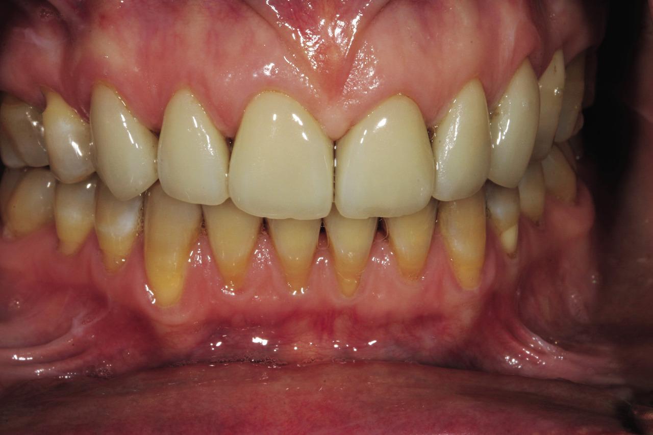 Рис. 1. После предыдущего лечения пациентки передние зубы 6—11 имеют хорошую форму и правильно подобранный цвет. Однако пациентка недовольна эффектом «черного треугольника» между зубами.
