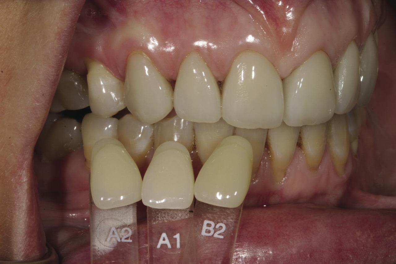 Рис. 2. Во время подборочного приема зубной техник перебрал 3 образца из Оттеночной шкалы Vita — А1, А2 и В2. Хотя ни один из них точно не соответствовал естественному цвету зубов пациентки, таким образом была выбрана основа для дальнейшей работы зубного техника по подбору оттенка.