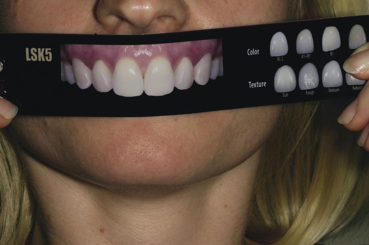 Рис. 3. С помощью Шкалы подбора улыбки LSK121 пациентка имела возможность выбрать форму зубов, которую предпочитает для собственной улыбки, а также их оттенок и текстуру.