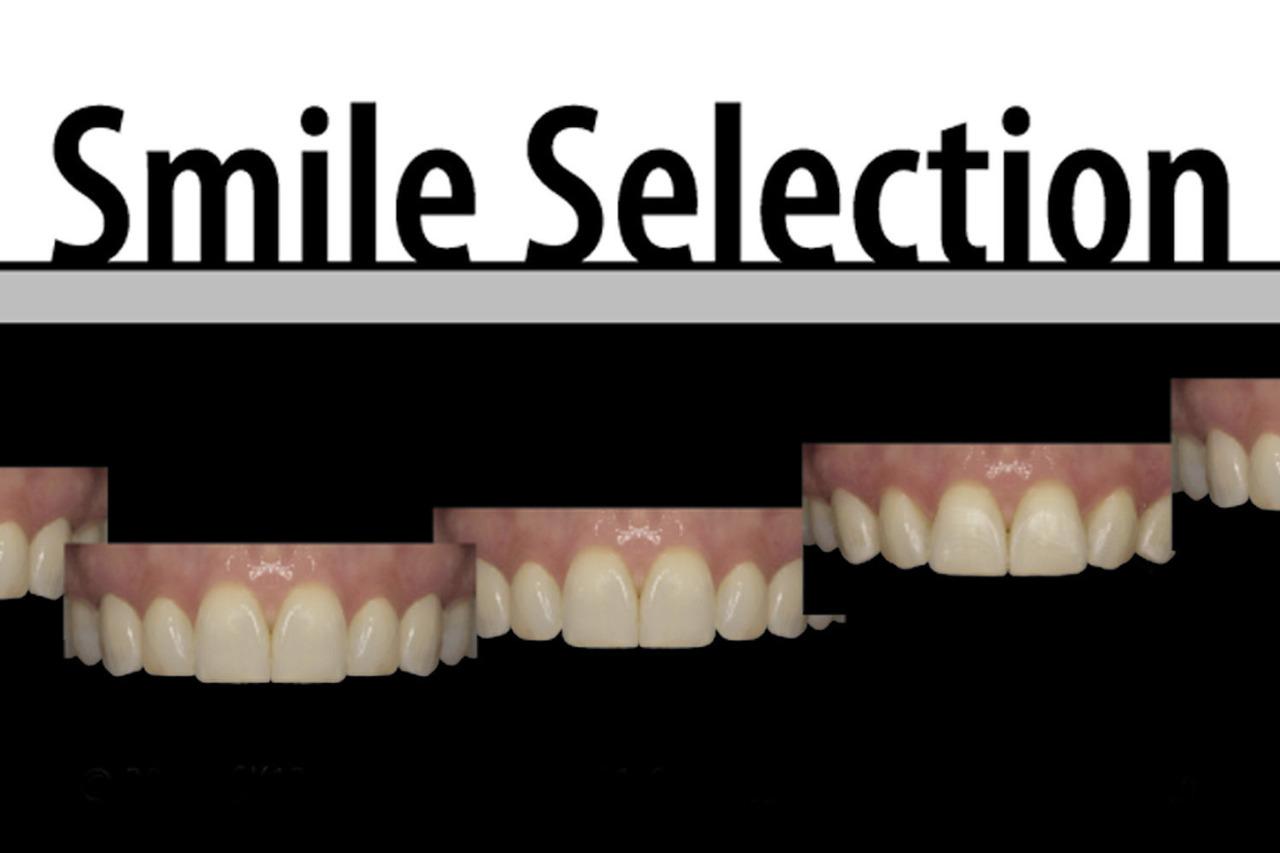 Рис. 4. На этой фотографии показаны несколько возможных вариантов формы улыбки.