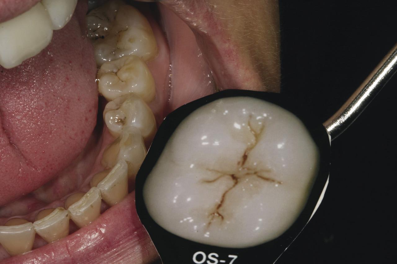 Рис. 5. С помощью оттеночной шкалы эмали и препарированной эмали LSK принято решение относительно оттенка окклюзионных красителей для моляров пациентки.