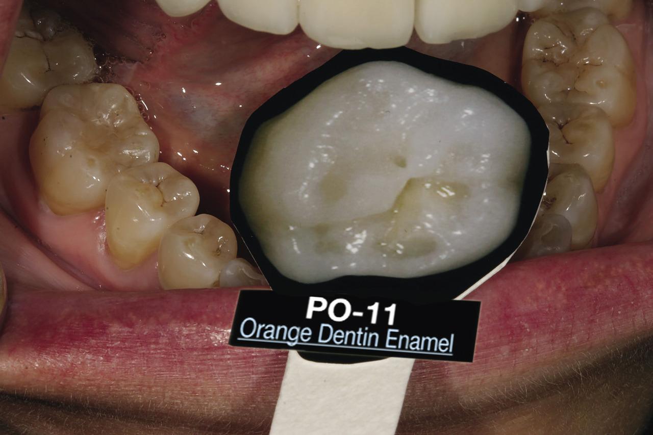 Рис. 7. С помощью оттеночной шкалы эмали и препарированной эмали LSK принято решение относительно оттенка окклюзионных красителей для моляров пациентки.