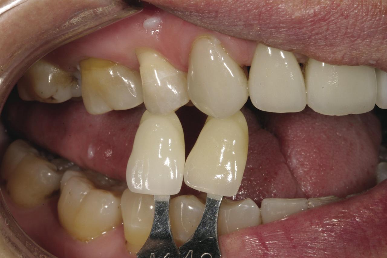 Рис. 8. Следующий шаг: сравнить белую область кальцификации в зоне режущего края зубов пациентки с двумя образцами оттенков и с CS?G, чтобы определить, какой из вариантов наиболее близок к ее естественному оттенку.
