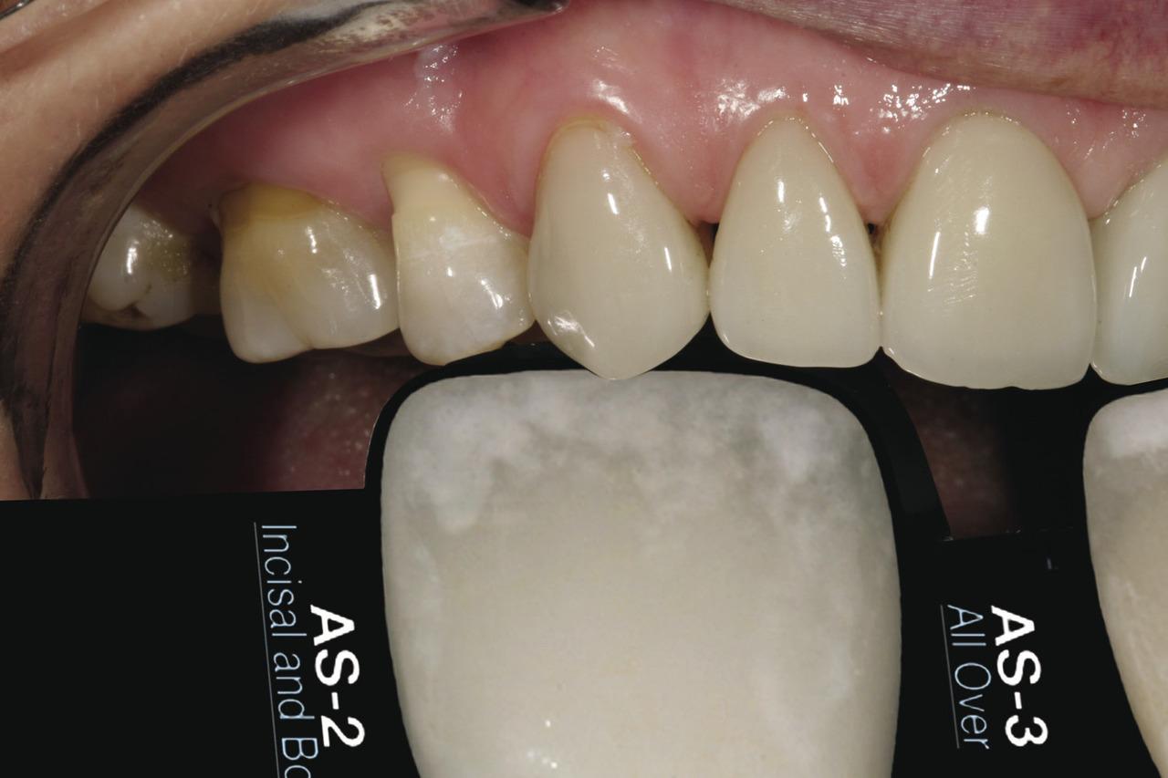 Рис. 9. Следующий шаг: сравнить белую область кальцификации в зоне режущего края зубов пациентки с двумя образцами оттенков и с CS?G, чтобы определить, какой из вариантов наиболее близок к ее естественному оттенку.