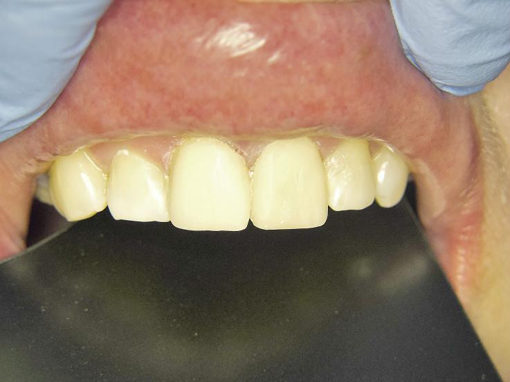 Рис. 10. Зубы 1.1, 2.1 и 2.2, окончательный вид после реставрации материалом «Амарис».