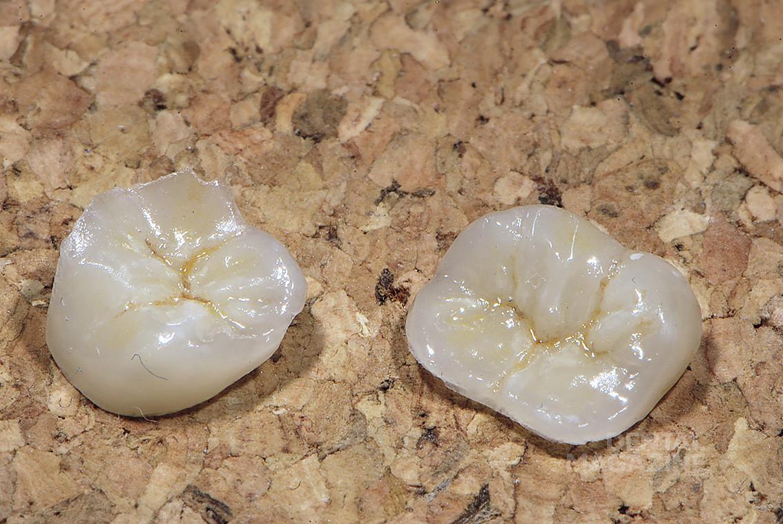 Рис. 10. Пример фотографии керамических вкладок.