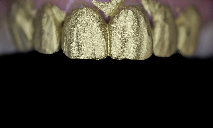 Рис. 10. Матовый лак подчеркивает все текстурные особенности вестибулярных поверхностей реставраций.