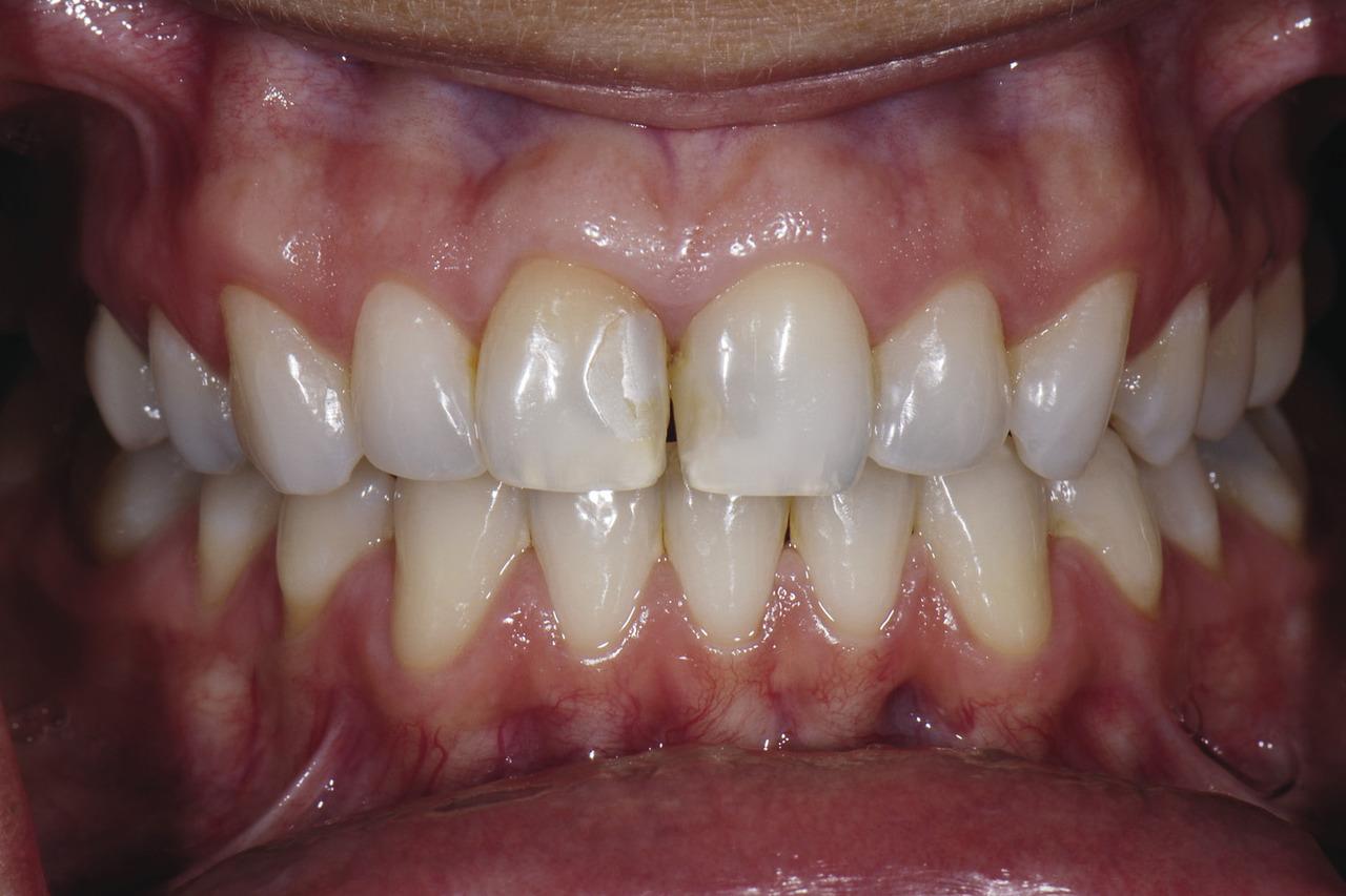 Рис. 10. Перед лечением: пациентка недовольна зоной потемнения между верхними передними зубами, вид с установленным ретрактором и естественная улыбка.