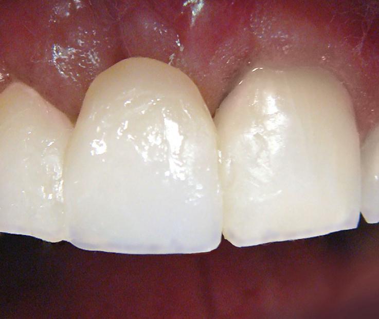 Рис. 11. Эмалевыми оттенками композита выполнена вестибулярная поверхность 11 зуба.