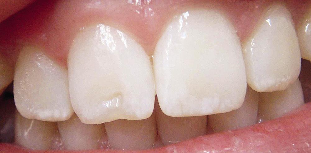 Рис. 11. Скол зуба в области режущего края 11 зуба, имеющего белые пятна гипоплазии.