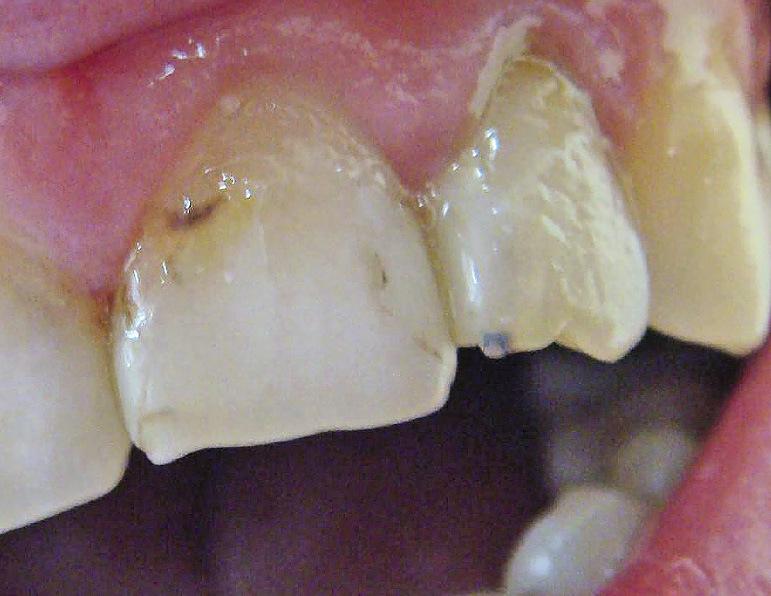 Рис. 11. В мезиальном углу 22 зуба через пломбировочный материал просвечивает парапульпарный штифт.