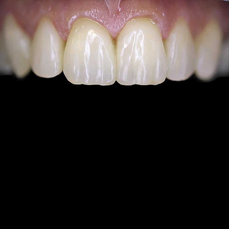 Рис. 11. Поверхность реставраций 13—23 зубов после финишной обработки приобрела натуральный блеск.