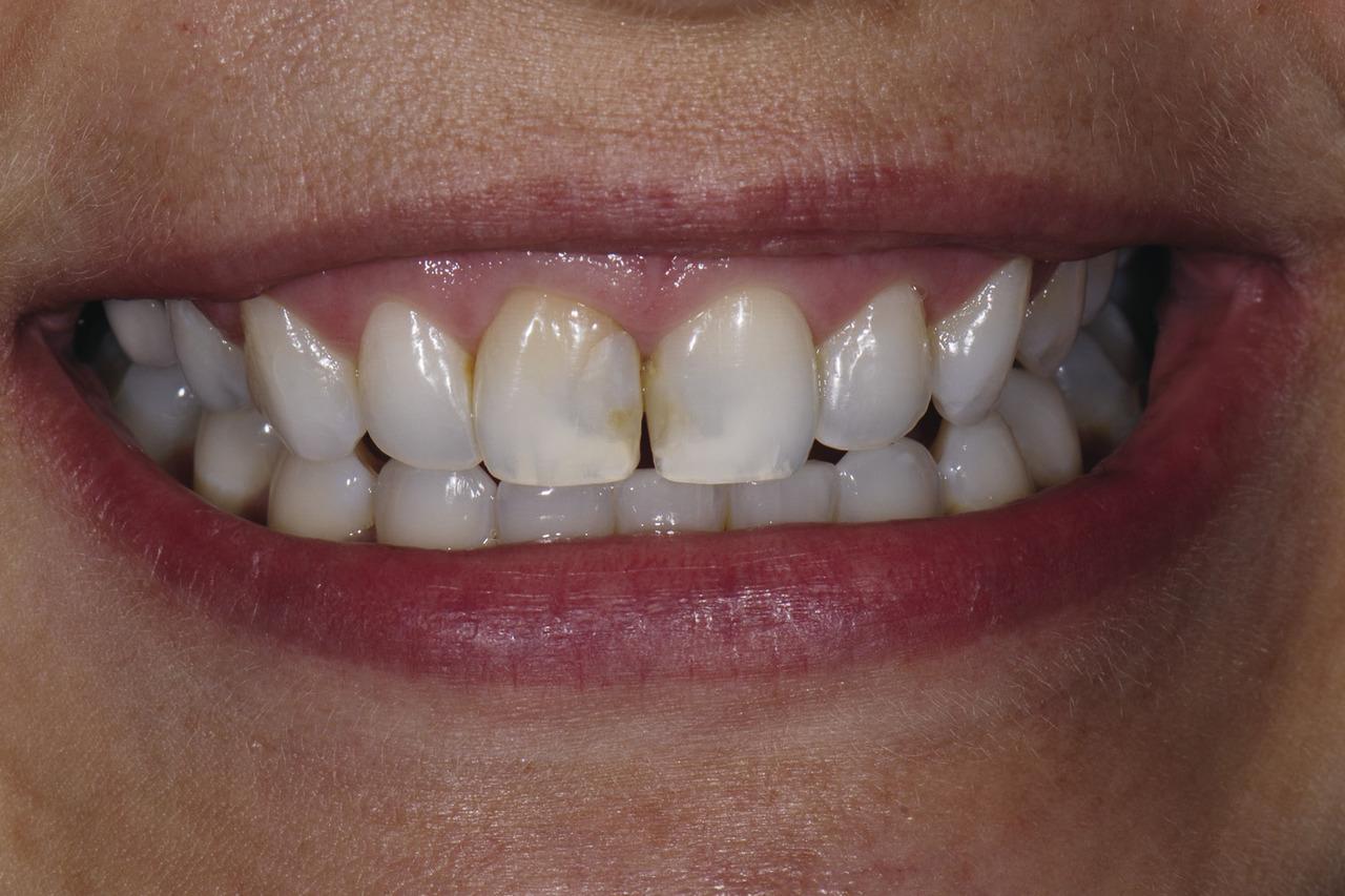 Рис. 11. Перед лечением: пациентка недовольна зоной потемнения между верхними передними зубами, вид с установленным ретрактором и естественная улыбка.