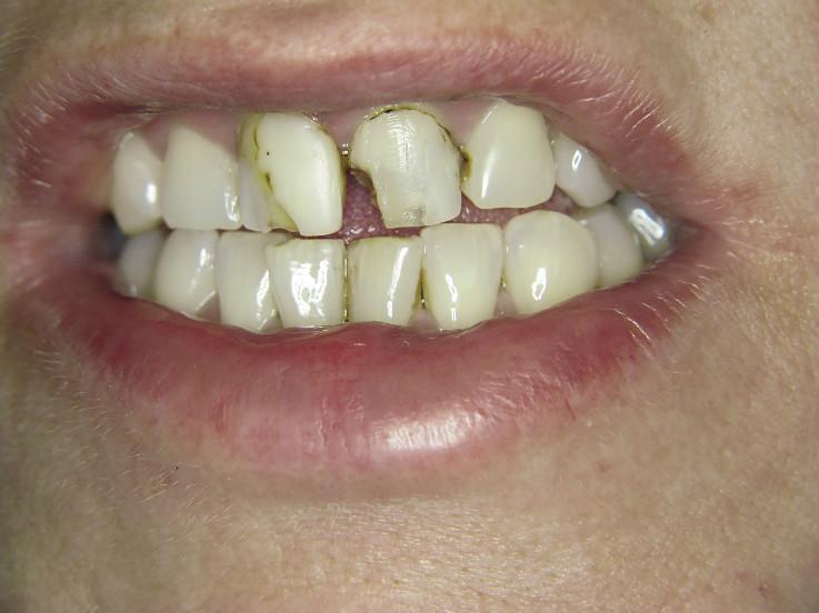 Рис. 1. Зубы 1.1, 2.1 и 2.2, исходная ситуация.