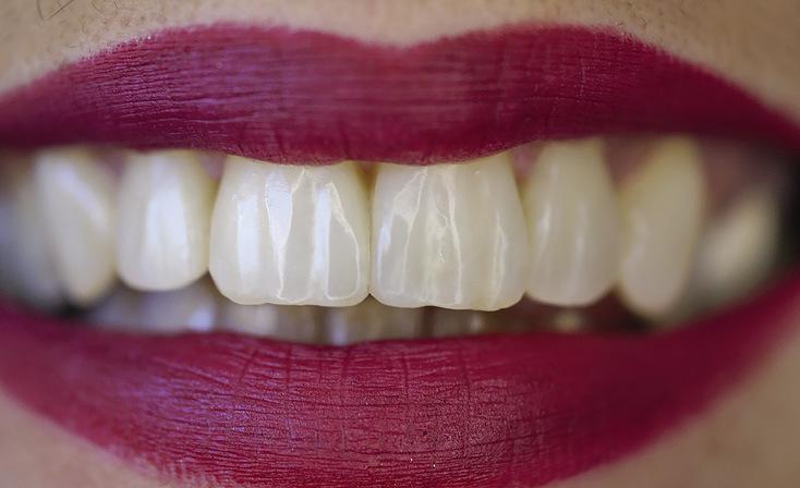 Рис. 12. Внешний вид зубов при дневном освещении: впечатляющий результат.