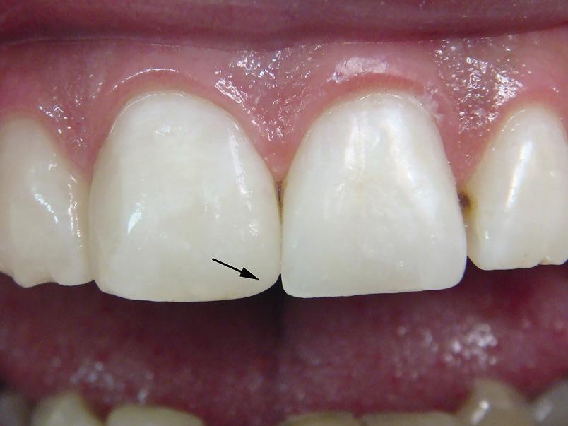 Рис. 12. Реставрация 11 зуба отличается отсутствием воссоздания признака угла коронки.