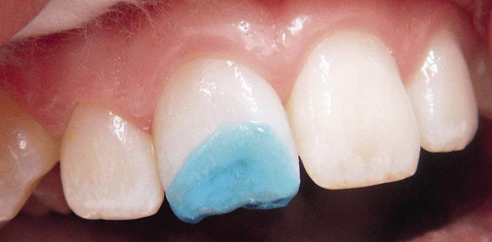 Рис. 12. Травление препарированных тканей зуба.