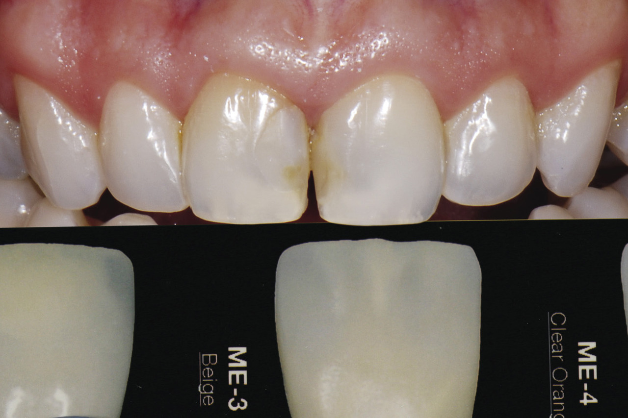 Рис. 12. Оттенок мамелонов пациентки сверяется с оттеночной шкалой LSK и определяется как ME3 бежевый.