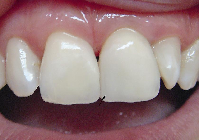 Рис. 13. Пломба на медиальной поверхности 21 зуба не имеет признака кривизны коронки, что визуально делает эту часть зуба запавшей.