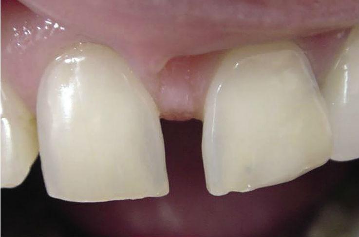 Рис. 14. На дистальной поверхности верхнего левого центрального резца установлена реставрация без учета одонтометрии зубов, что подвергло визуальным метаморфозам геометрическую форму 21 зуба — из прямоугольной в треугольную.