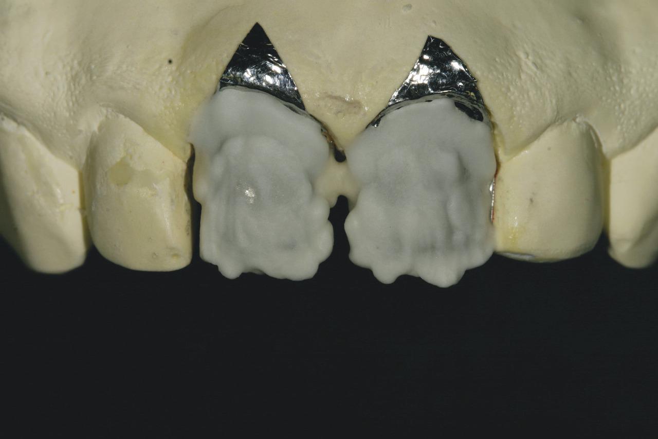 Рис. 14. Используя керамическую массу GC Initial, дентинные оттенки и технику моделирования на платиновой фольге, автор начал создавать керамические виниры.