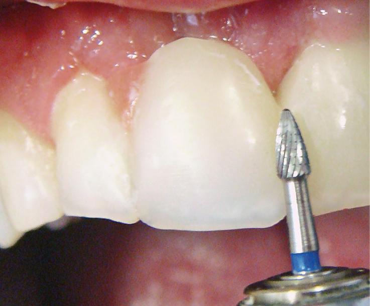 Рис. 15. Проксимальные поверхности искусственного зуба обработаны бором.