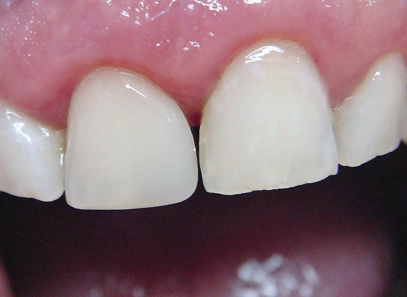 Рис. 15. Отсутствие контактного пункта и признака угла коронки в реставрации 11 зуба.