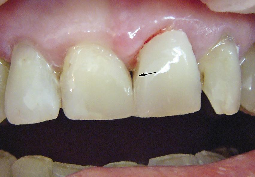 Рис. 17. Искажение мезиодистальных размеров пломбы в области шейки 21 зуба.