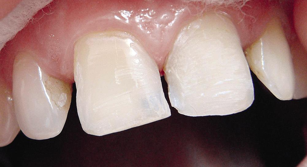 Рис. 18. Зубы после препарирования.